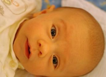 Физиологическая желтушка у новорожденного - вполне закономерное и совершенно безвредное состояние.